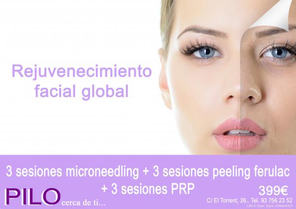 Rejuvenecimiento facial global: 3 sesiones Microneedling + 3 sesiones Peeling Ferulac + 3 sesiones PRP 699€.