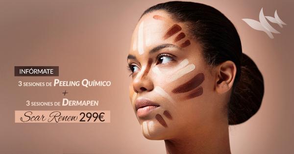 Scar Renew: 3 sesiones de Peeling Químico + 3 sesiones de Dermapen 299€ en TodoEstetica.com