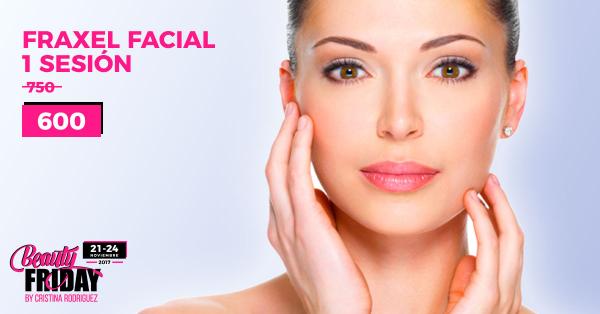 BEAUTY FRIDAY: Purifica tu rostro | Láser Fraxel Dual