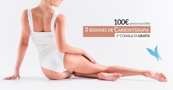 3 sesiones de carboxiterapia 100€ en TodoEstetica.com