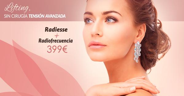 Lifting sin cirugía tensión avanzada: Radiofrecuencia + Radiesse 399€ en TodoEstetica.com