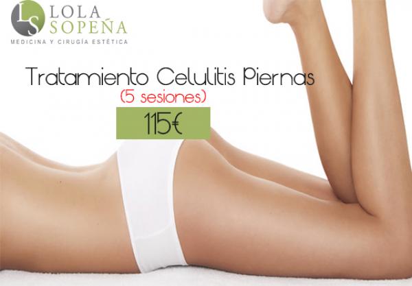 115€ TRATAMIENTO CELULITIS PIERNAS (5 SESIONES) en TodoEstetica.com