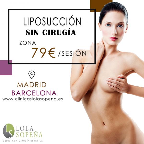 79€/sesión de Liposonic (Liposucción sin cirugía)