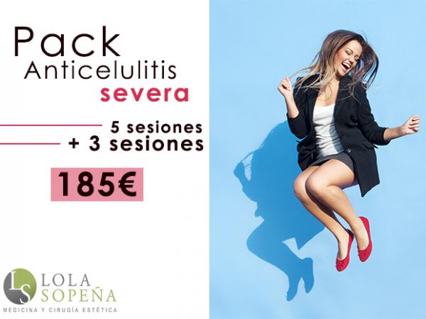 185€ 5 sesiones + 3 sesiones Pack Anticelulitis Severa en TodoEstetica.com