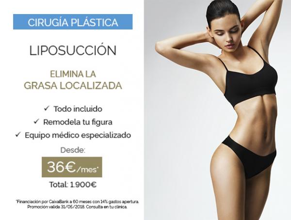 Liposucción en TodoEstetica.com