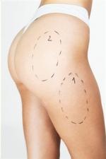 Liposucción 1 Zona: 1.300€ en TodoEstetica.com