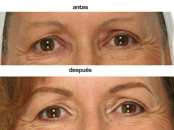 Micropigmentación y diseño cejas