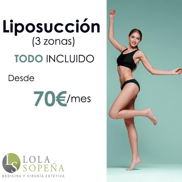 Desde 70€/mes Liposucción 3 zonas con Todo Incluido