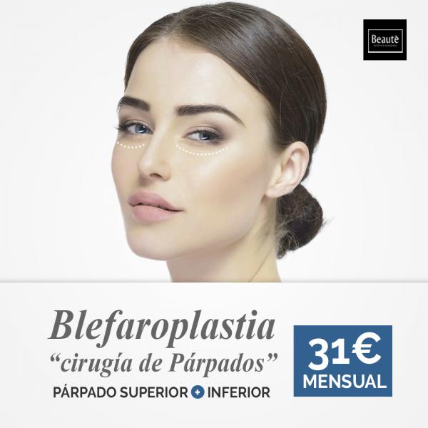 BLEFAROPLASTIA  - CIRUGÍA DE PÁRPADOS