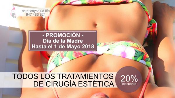 20% descuento en Cirugía Estética hasta el 1 de Mayo de 2018