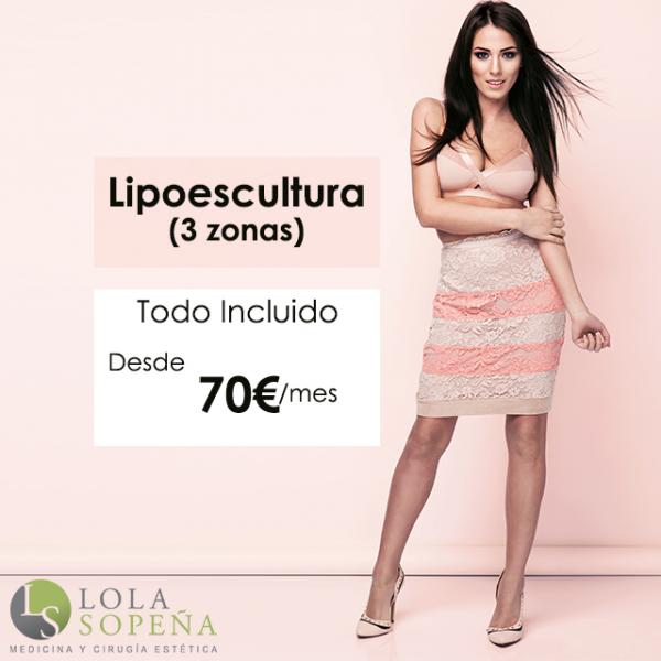 Desde 70€ Lipoescultura (3 zonas) con todo incluido en TodoEstetica.com