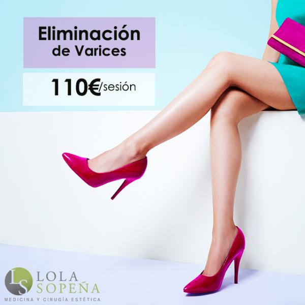 110€/sesión Eliminación de varices en TodoEstetica.com