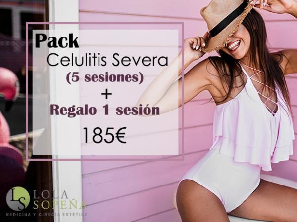 185€ 5 sesiones + 1 sesión Pack Anticelulitis Severa
