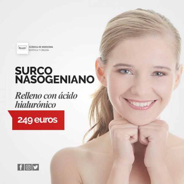 SURCO NASOGENIANO en TodoEstetica.com