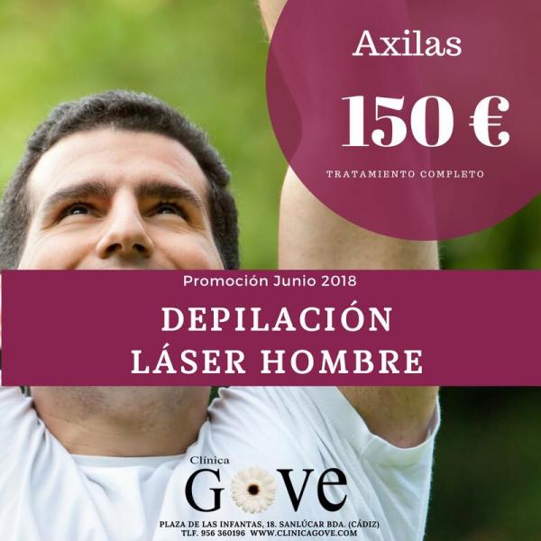 Oferta junio depilación láser hombre en TodoEstetica.com