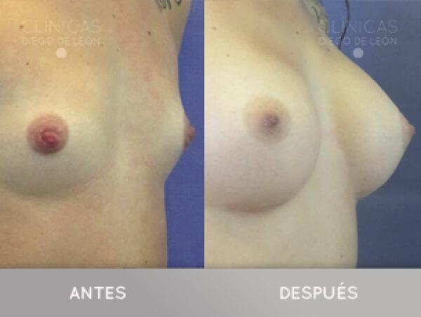 AUMENTO DE SENOS CON IMPLANTES 3.390 € TODO INCLUIDO  en TodoEstetica.com