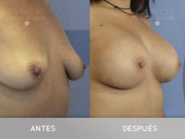 AUMENTO DE SENOS 3.390 € TODO INCLUIDO en TodoEstetica.com