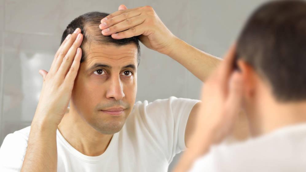 Trasplante capilar: ¿tiene solución la caída del pelo?