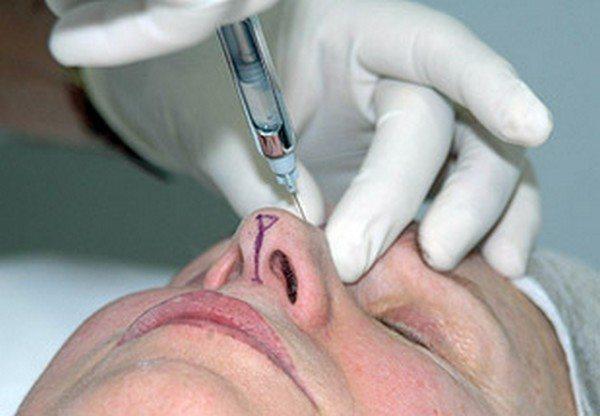 Rinomodelación, renovar la nariz sin cirugía