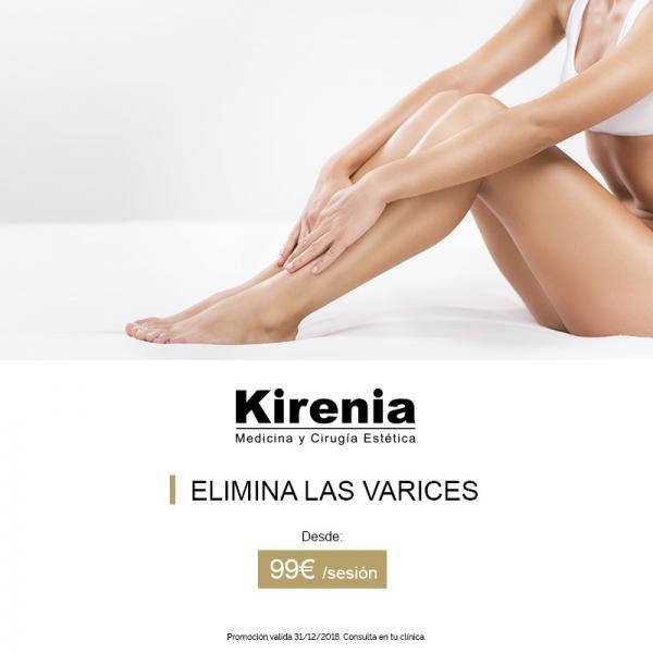 Elimina las varices en Kirenia en TodoEstetica.com