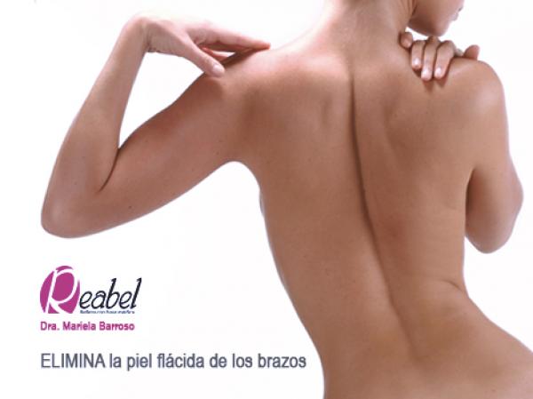 BRAZOS PERFECTOS Mesoterapia en TodoEstetica.com