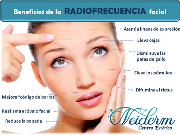 15% descuento Bono Radiofrecuencia Facial