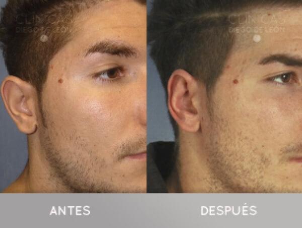 Corrección de orejas 1.590 € TODO INCLUIDO en TodoEstetica.com