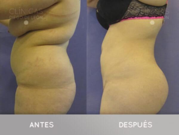 2 Liposucciones y Aumento de Glúteos con tu grasa 3.800 € todo Incluido