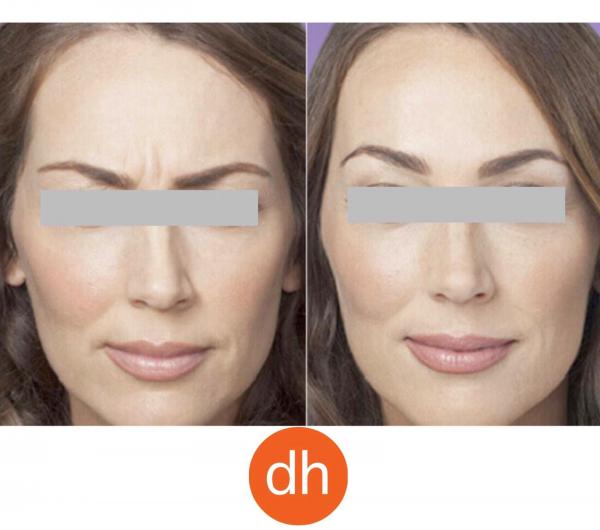 Rejuvenecimiento facial con Botox antes 350€ ahora 245€.