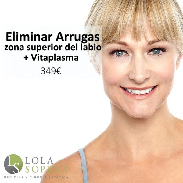 Eliminar arrugas zona superior del labio + Vitaplasma 349€