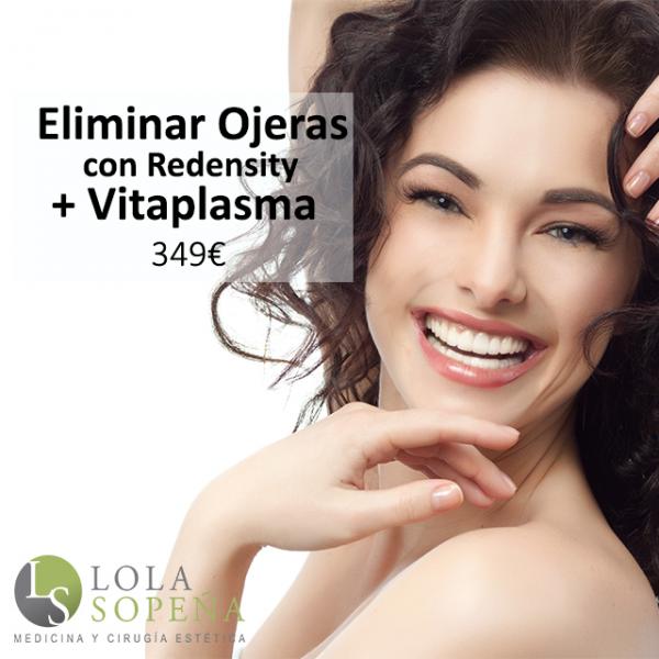 Eliminar Ojeras con Redensity + Vitaplasma 349€
