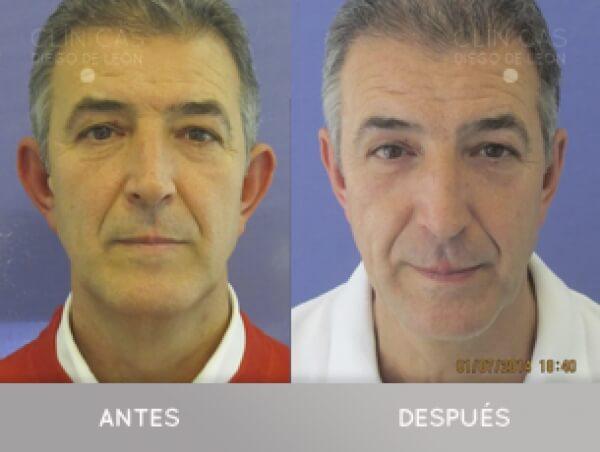 OTOPLASTIA 1.490 € TODO INCLUIDO  en TodoEstetica.com