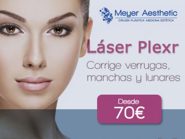 Láser Plexr desde 70 euros