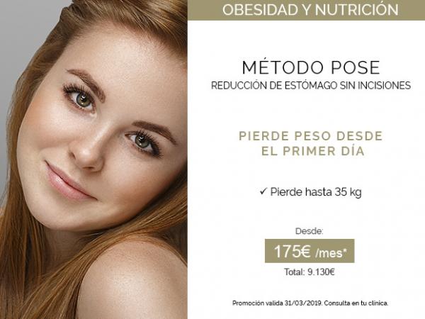 Método POSE - Reducción de estómago sin incisiones en TodoEstetica.com