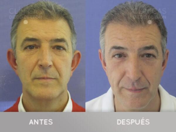 OTOPLASTIA 1.590€ TODO INCLUIDO  en TodoEstetica.com