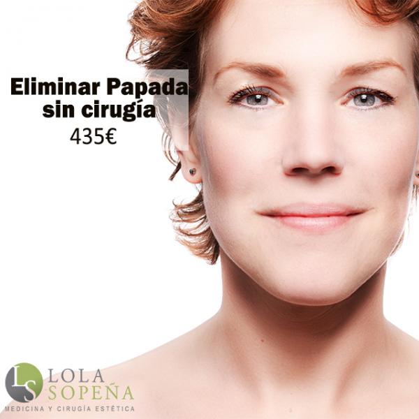 Eliminar Papada sin cirugía 435€ en TodoEstetica.com