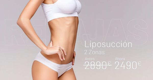 Rebajas Enero-  Liposucción en TodoEstetica.com