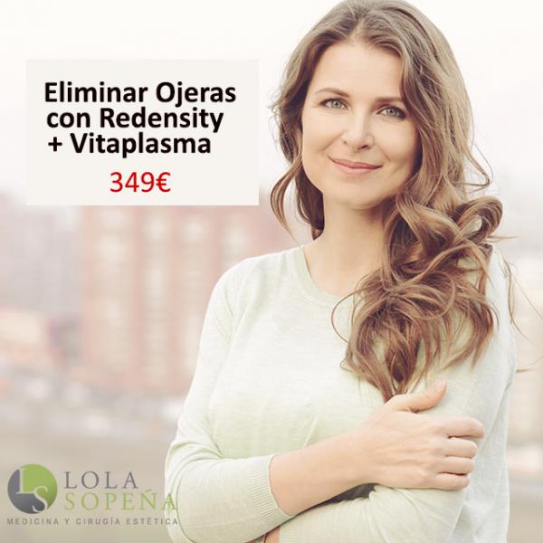 Eliminación de ojeras con Redensity + Vitaplasma (PRP + Vitaminas) 349€