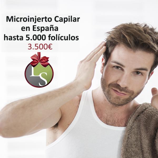 Micrpoinjerto Ca`pilar en España hasta 5.000 folículos