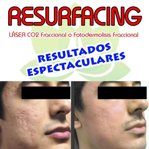 RESURFACING en TodoEstetica.com