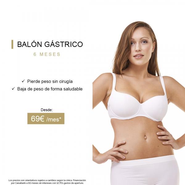 Balón Gástrico - Pierde peso sin cirugía