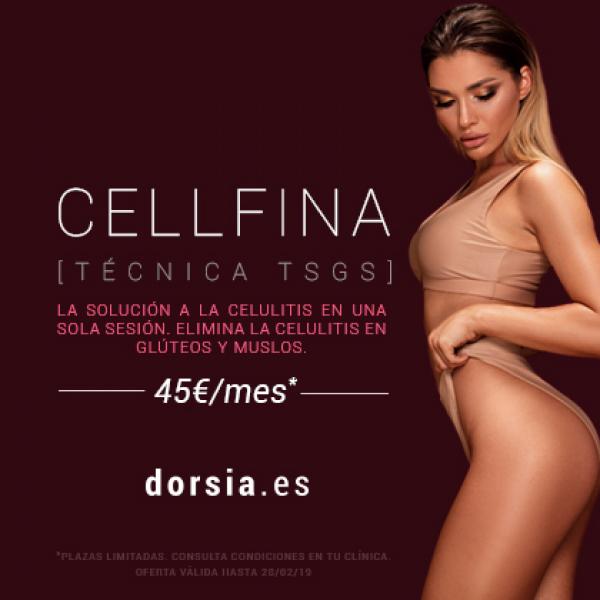 Método TSGS, CELLFINA.  La solución a la celulitis en una sola sesión. Elimina la celulitis en glúteos y muslos desde 45€ al mes.