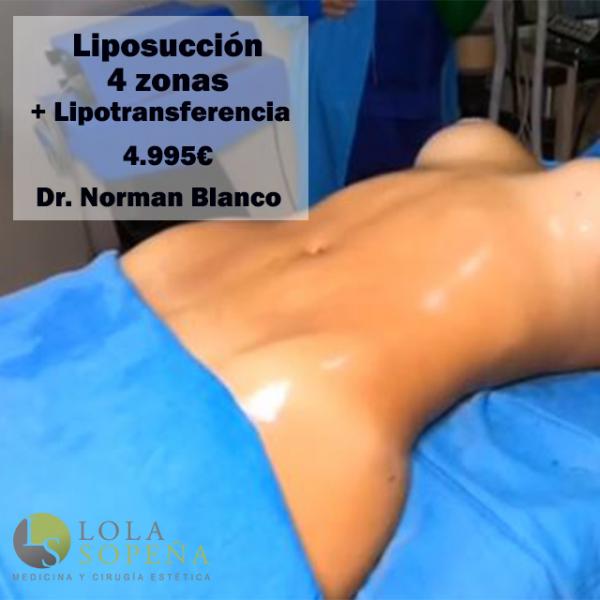Liposucción 4 zonas + Lipotransferencia a glúteos 4.995€