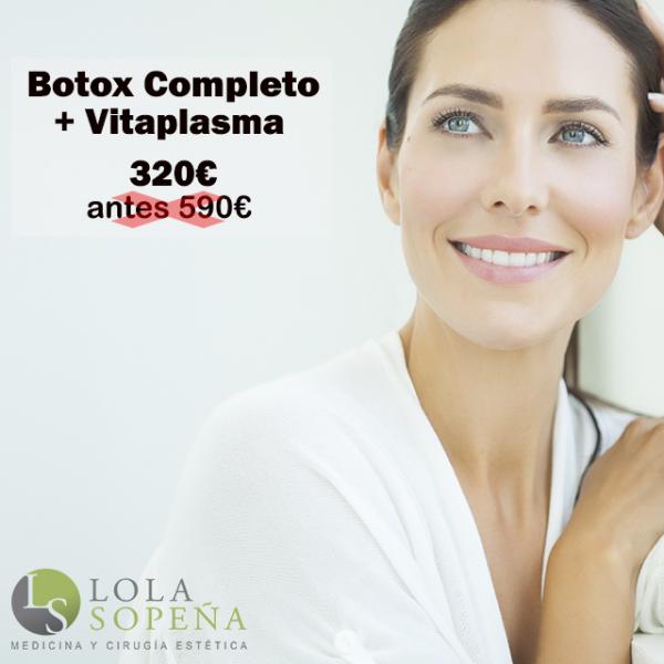 Botox Completo + Vitaplasma (PRP + Vitaminas) 320€