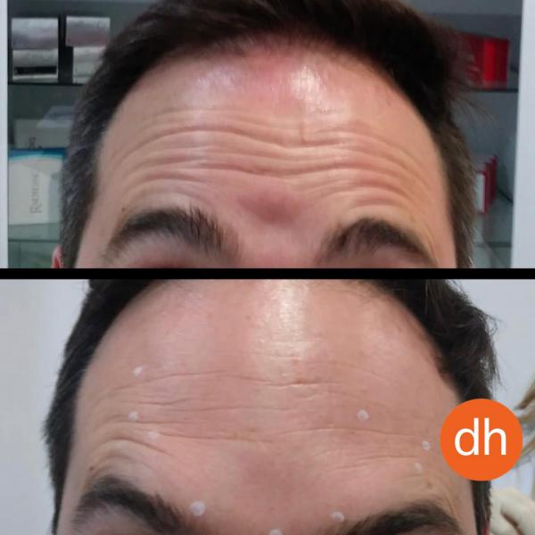 ¿Quieres eliminar tus arrugas de expresión?. Ahora por 49€ al mes *.