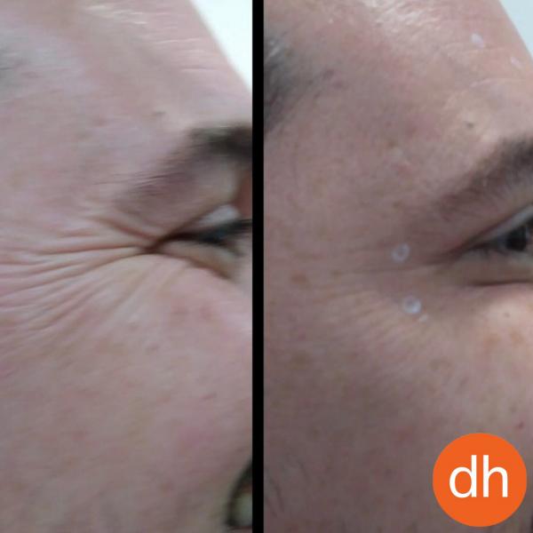 ¿Quieres eliminar tus arrugas de expresión?. Ahora por 49€ al mes *. en TodoEstetica.com