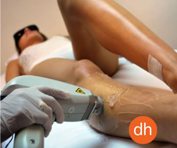 Sesión de Depilación al 50% de descuento con Láser Diodo, Láser Soprano Xli, Láser SHR ( hair removal system)