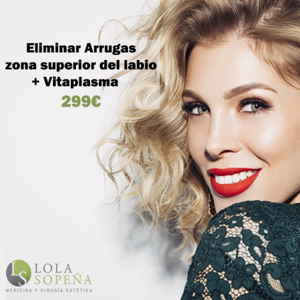 Eliminación arrugas zona superior del labio + Vitaplasma  299€