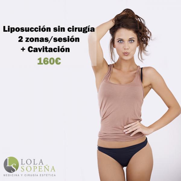 Liposucción sin cirugía 2 zonas/sesión + Cavitación 160€