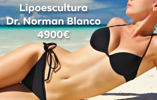 LIPOESCULTURA NORMAN BLANCO